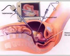 kogda-posle-laparoskopii-mozhno-seks